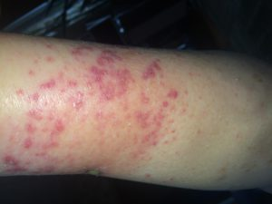 Болезни кожи дерматолог кожник