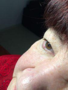 гемангиома palpebra inferior