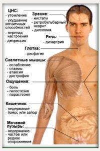 Рассеянный склероз: зоны возможного поражения
