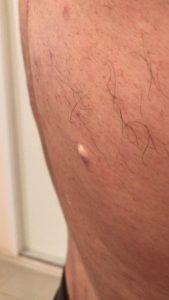 Атерома - жировик кожи спины