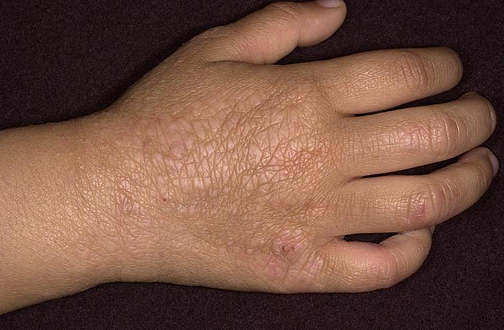 Выраженный кожный рисунок при хронической стадии атопического дерматита