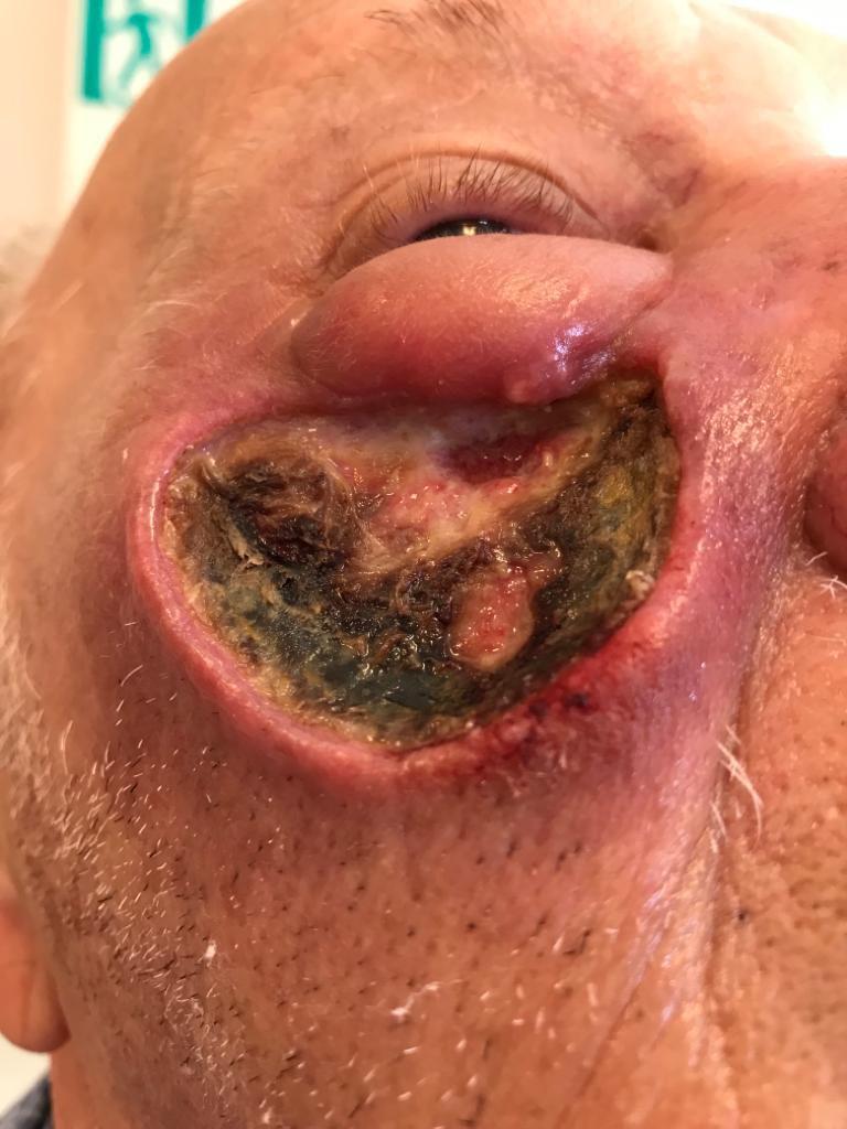 Рак кожи лица