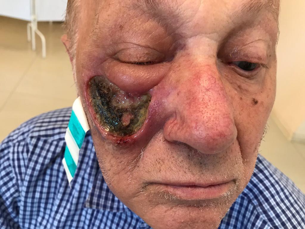 Рук кожи лица лечение в Ростове-на-Дону