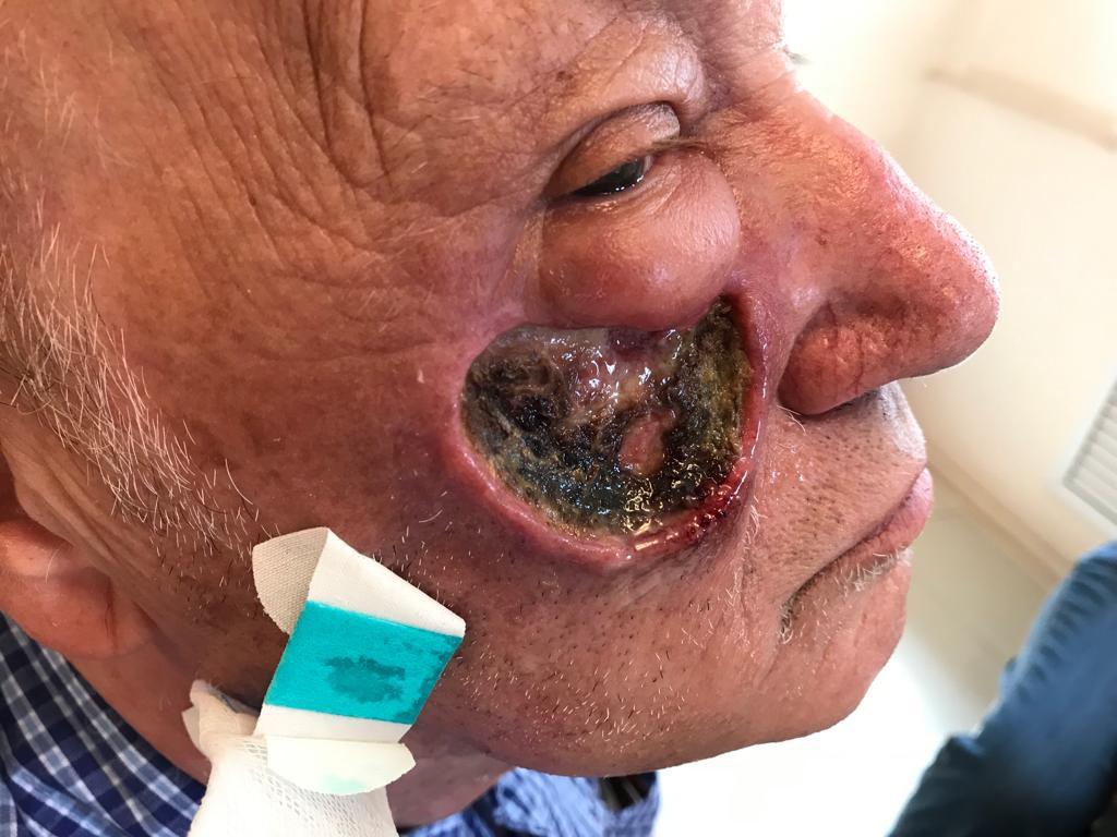 Рак кожи лица симптомы лечение